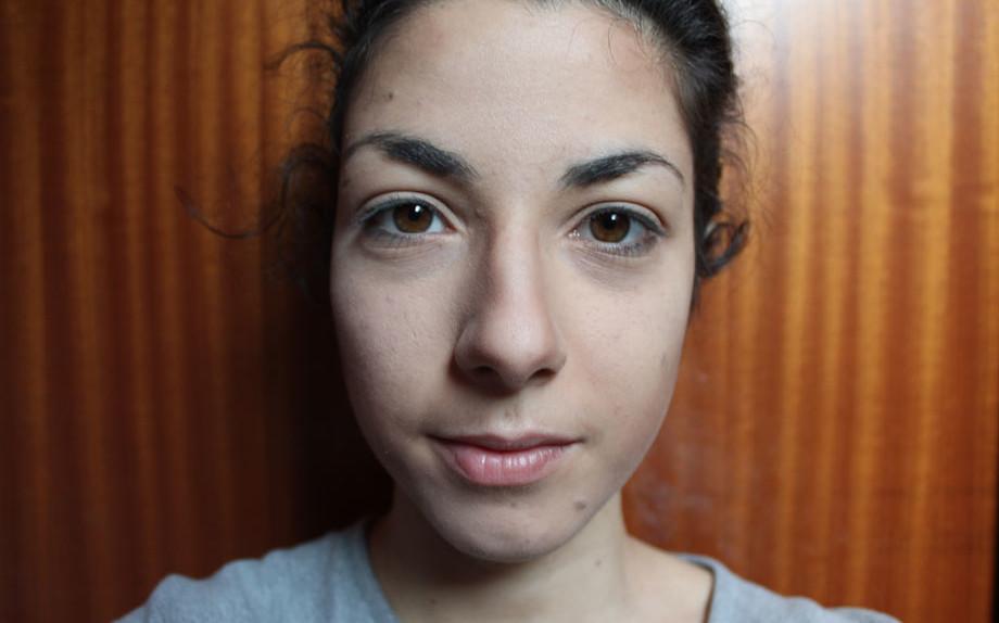 Il contenuto grosso aumentato di posti della pelle di faccia