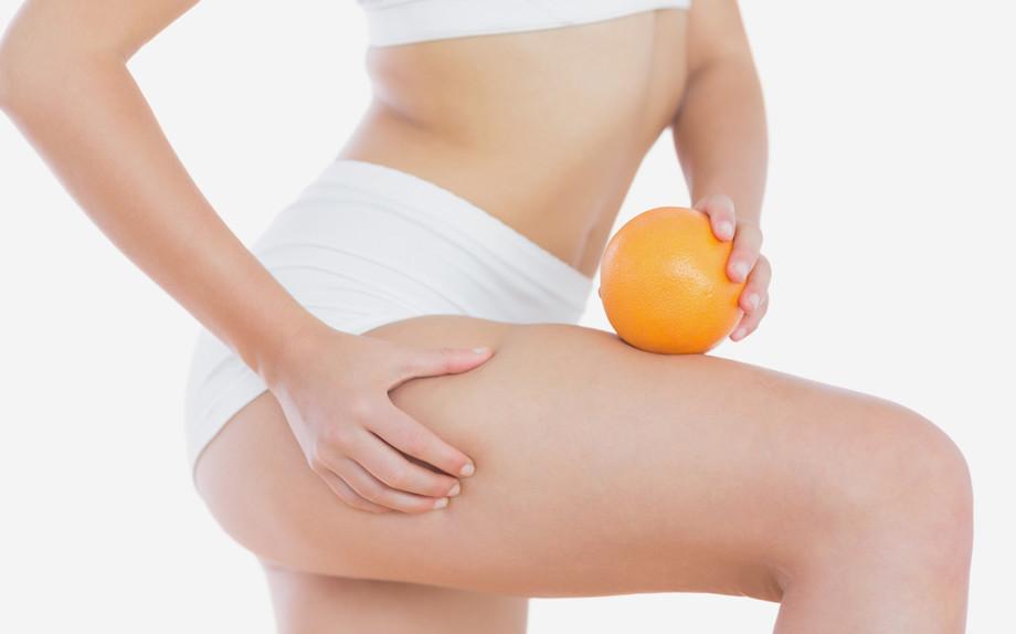 Cellulite, 7 rimedi last minute super efficaci