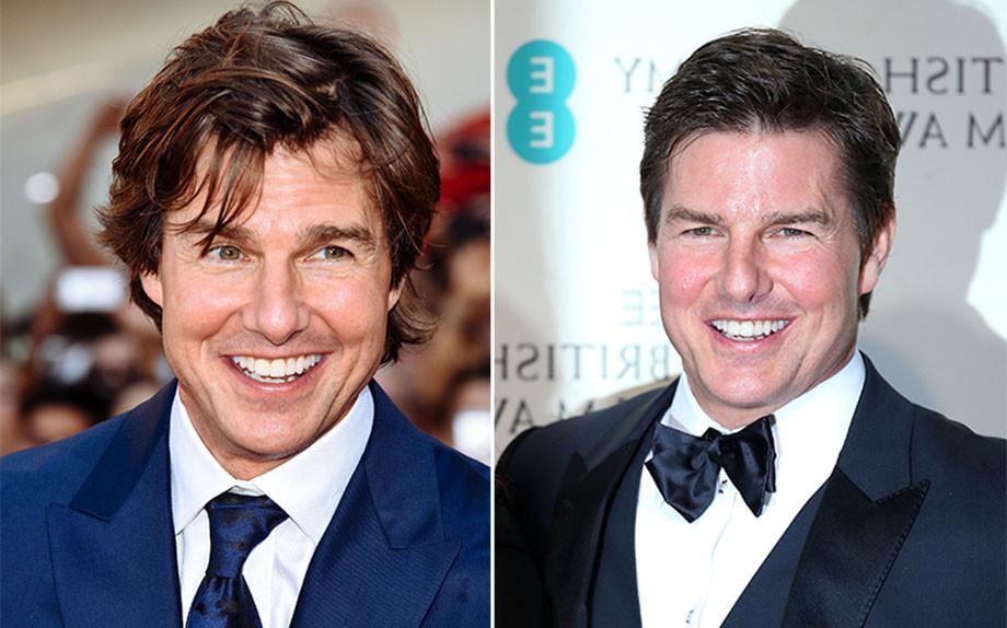 Botox & Co: uomini perché non ammettete che anche voi lo fate per vanità?