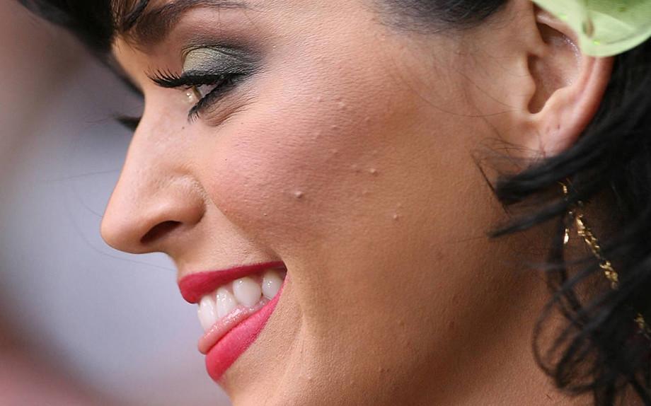 Chi soffre d'acne vive più a lungo, lo dice uno studio