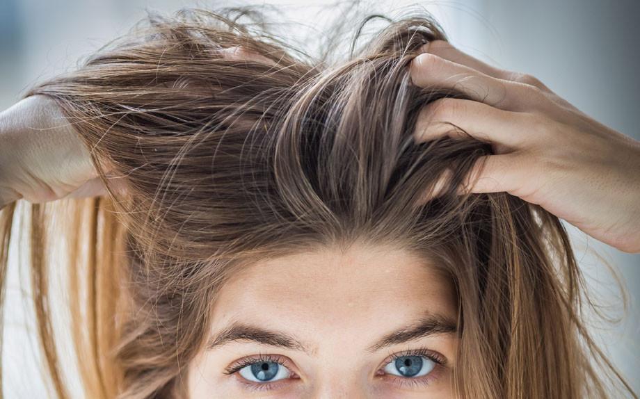 Forfora: origini e rimedi per avere capelli splendidi ...