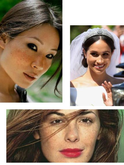 Macchie solari e lentiggini: Lucy Liu, Meghan Markle e Vanessa Incontrada... cosa le accomuna?