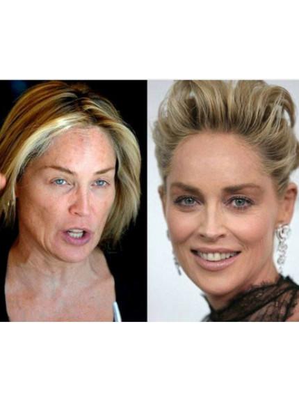 La bellissima Sharon Stone (pic via Pinterest) effettivamente qualche problemino con le macchie lo ha!