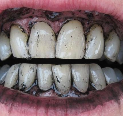 denti carbone