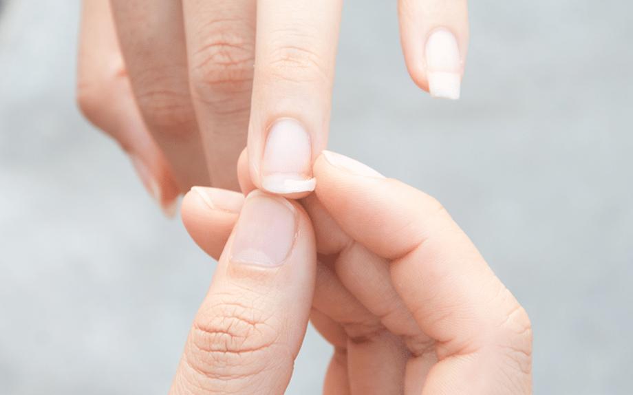Unghie che si sfaldano: perché succede e come curarle