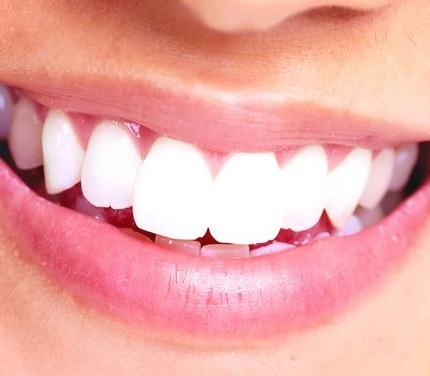 3 Modi per Sbiancarsi i Denti in un'Ora - wikiHow