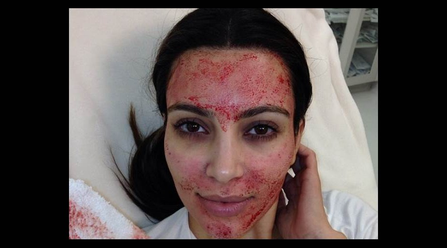 2D274905752081-kim-kardashian-vampire-facial-636.social_share_1024x512_center